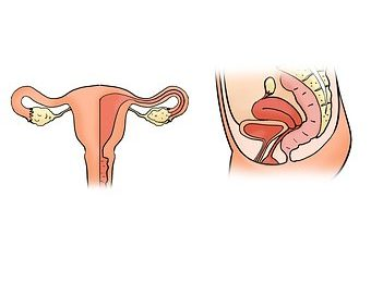 Endometrite ed infertilità
