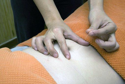 I benefici dell'agopuntura nella fecondazione in vitro