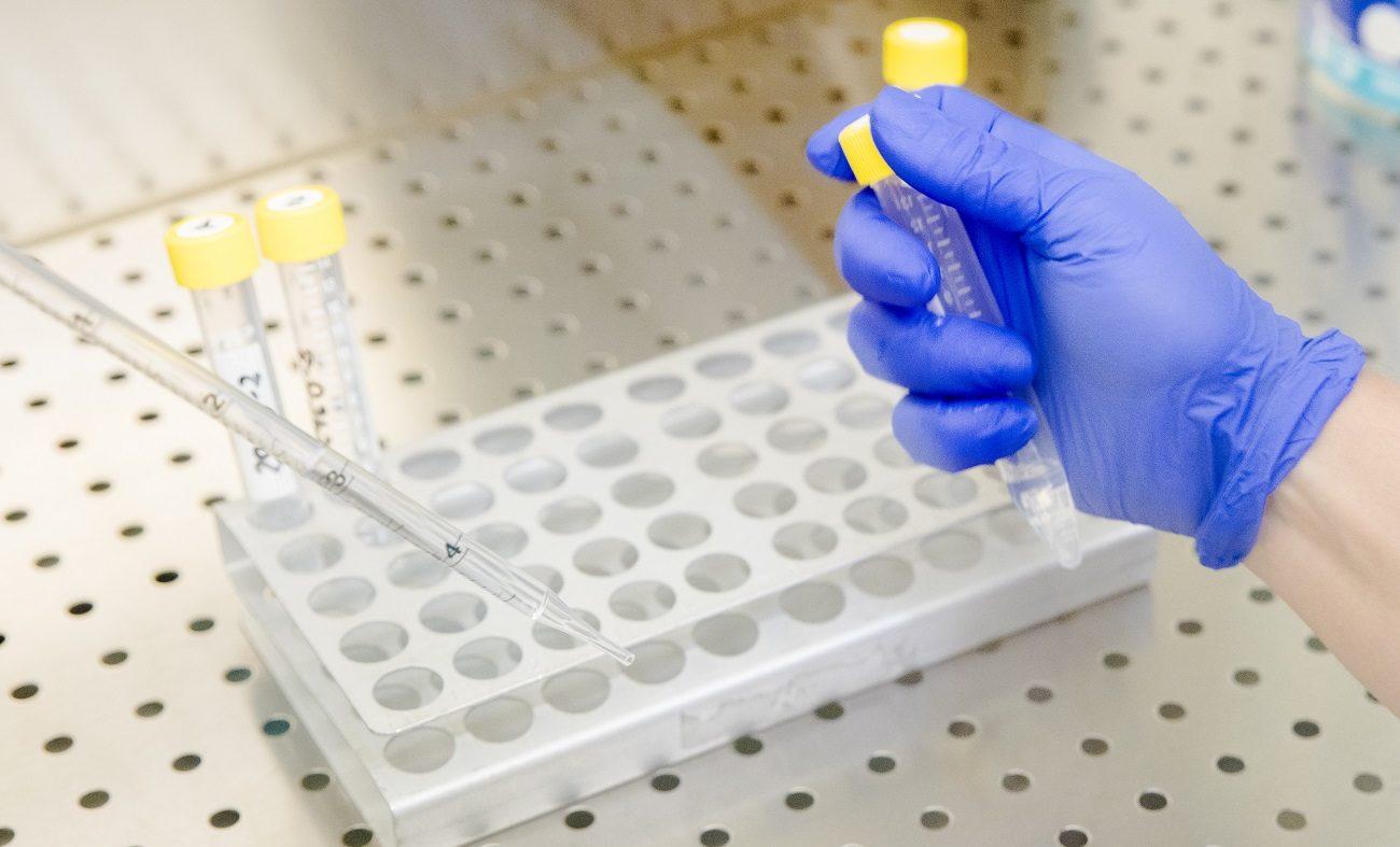 Tecniche di editing genomico